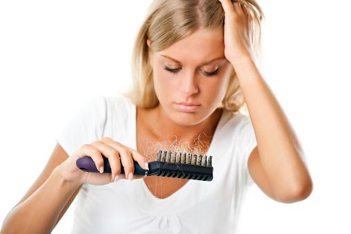 Calvizie Femminili perdita capelli donna